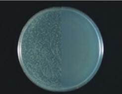 Enterococcus faecium(VRE)